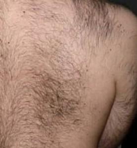 Många män har hårväxt på ryggen